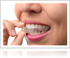 Invisalign Benefits
